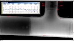 Digitale Radiographie